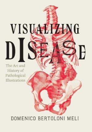 Visualizing disease : the art and history of pathological illustrations /  Bertoloni Meli, Domenico, author